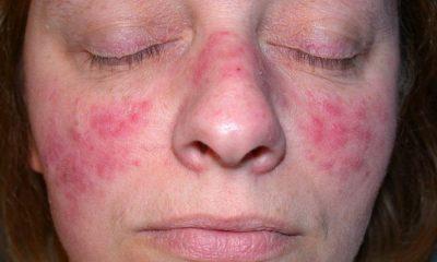 El acné, una enfermedad