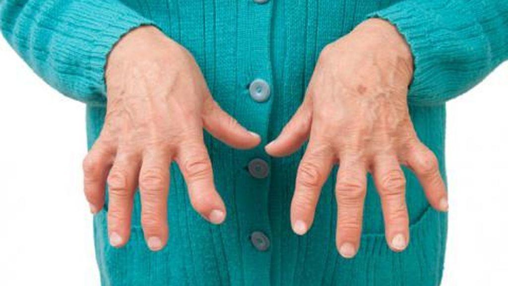 Conoce remedios caseros contra la artritis.