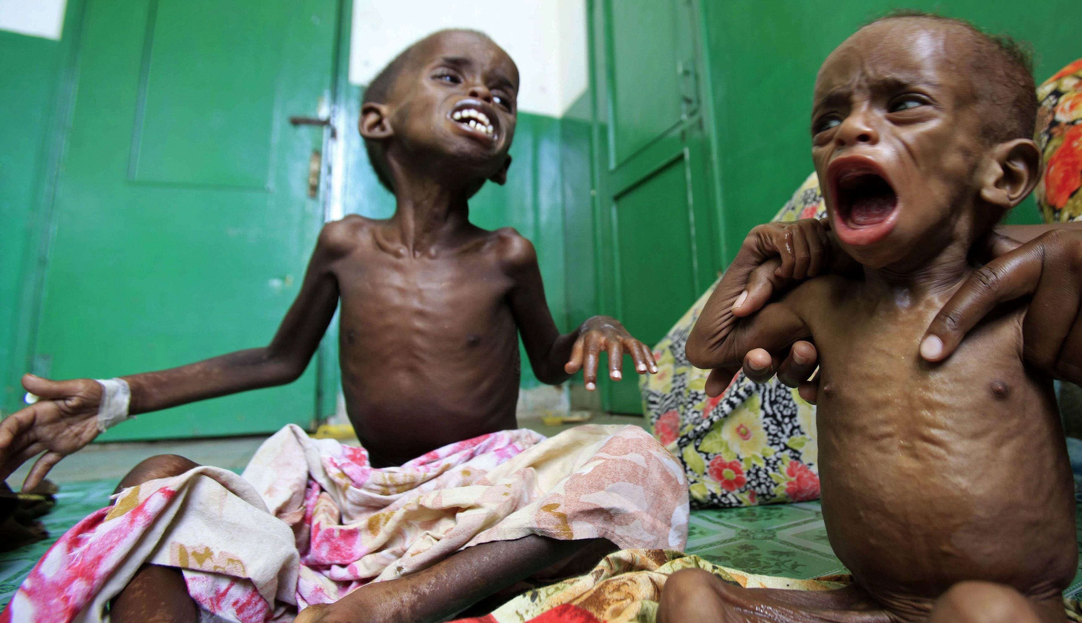 ONU califica la hambruna de Yemen como la más fuerte del mundo en 100 años