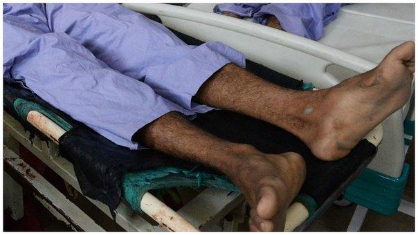 Al menos 68 muertos en Afganistán en atentado suicida contra manifestantes