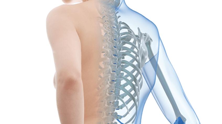Una de las señales para diagnosticar la osteoporosis de manera temprana