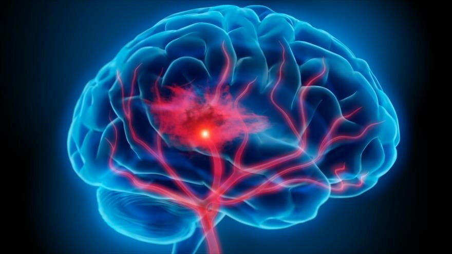 Estudio revela que el ejercitarse físicamente evita el envejecimiento cerebral