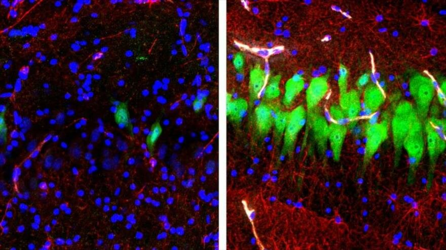 Científicos logran revivir el cerebro de animales muertos debido a experimento
