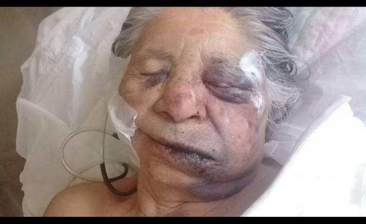 abuela muere prendida en fuego